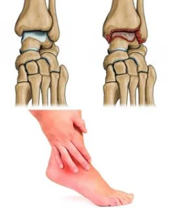 What to do if you have arthritis pain